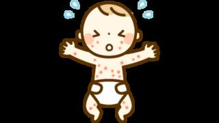 とびひの赤ちゃんのイラスト